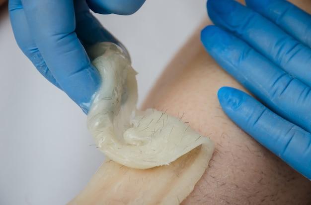 Профессиональные руки работника салона в латексных синих перчатках наносят пасту из сахара для депиляции на женские ножки клиента