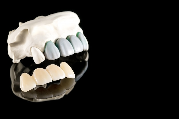 Prosthodontics or prosthetic