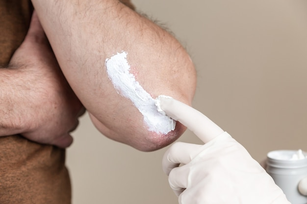 Psoriasis ointment. a dermatologist in gloves applies a therapeutic ointment to the affected skin of a patient with psoriasis. treatment of chronic dermatoses eczema, dermatitis