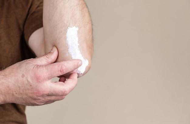 乾癬軟膏。薬の剤形として軟膏を使用した皮膚病の治療。患者は、肘の部分のクローズアップで皮膚に医学的治療用軟膏の濃厚な粘稠度またはクリーム保湿剤を引き起こします