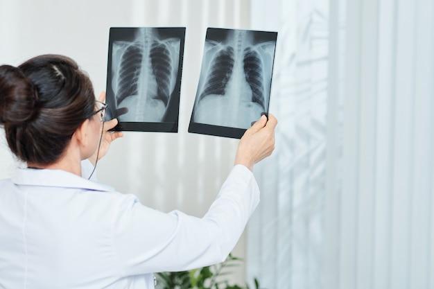 X線をチェックする呼吸器科医