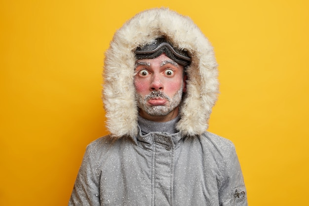 Puzzled frozen young man covered with snow spends all day outdoor during cold frosty weather low temperature being active skier dressed in warm jacket.