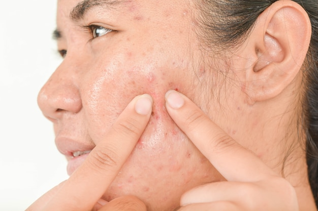 Queezing acne and pressing acne.