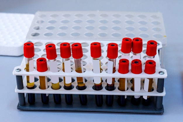 血液学の実験室で分析するための血液チューブのラックテスト。肺炎の診断。 covid-19およびコロナウイルスの同定。パンデミック。