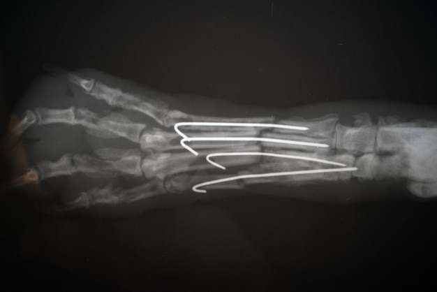 Radiography of a dog paw. real x ray image of an injured dog paw.