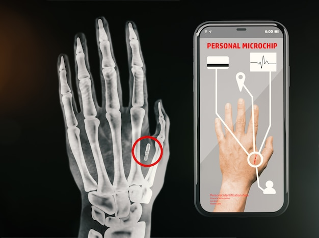 Radiography of a hand showing the personal microchip