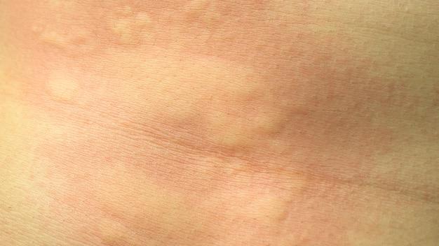 Rash, urticaria, medicine, dermatitis, health, itchy