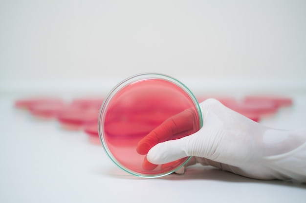 Red agar media plate handle by hand with sterile gloves