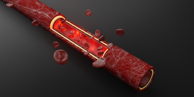 Red blood cells skin layer veins 3d illustration intravascular surgery