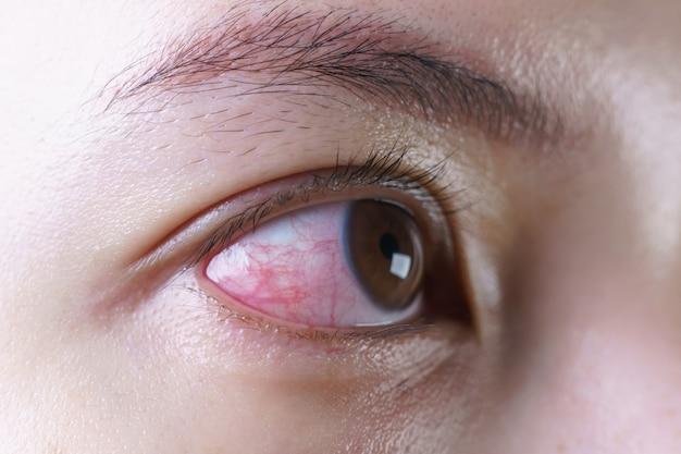 Красный налитый кровью глаз женщины
