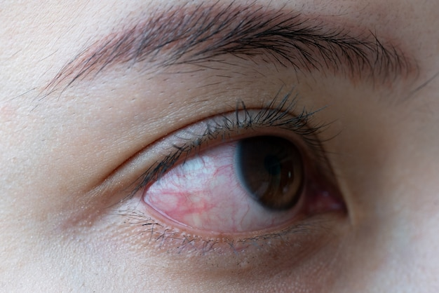 Красный глаз женщины, конъюнктивит глаз или после крика