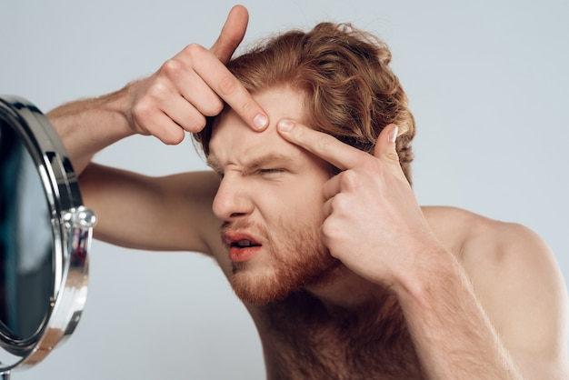 Red haired young man squeeze out pimple on forehead