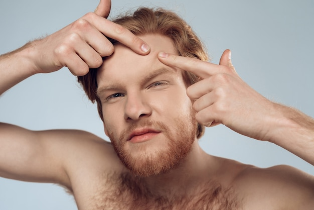 Red haired young man squeeze out pimple