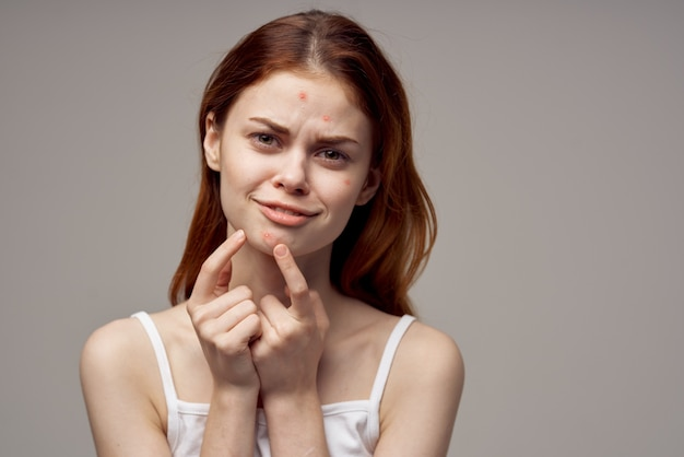 Redhaired woman facial skin problems dermatology isolated background