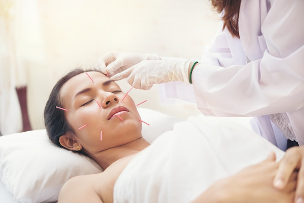 Relaxed young asian woman receiving acupuncture treatment in beauty spa