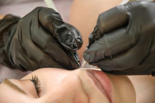 Удаление волос на лице у женщины с помощью электролиза