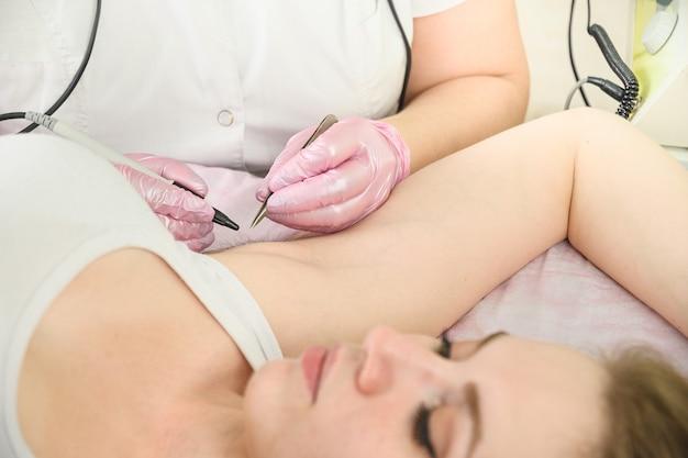 Постоянное удаление волос в подмышечных впадинах у женщин с помощью электролиза