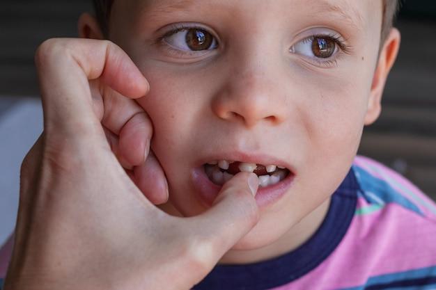 아기 치아 제거 용감한 강한 소년이 자신의 치아를 뽑아냅니다 건강한 아기 치아 손실