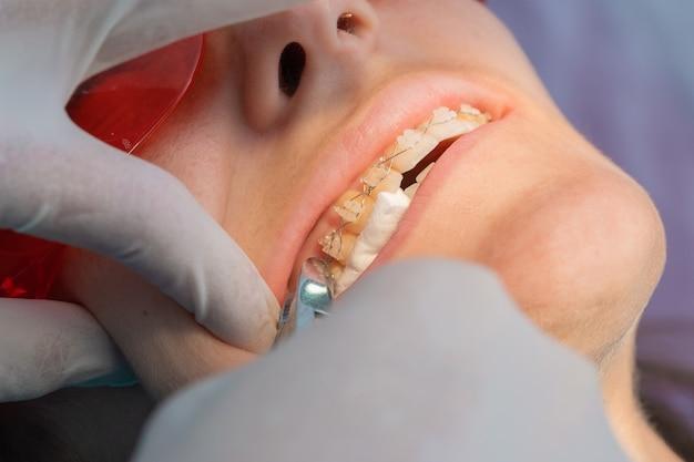 여성 치과 의사와 함께 치과에서 백인 소녀의 치아 교정기를 제거하는 과정에서 치과 교정기에서 브래킷 제거