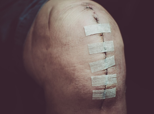 Replacement knee surgery operation on senior or elderly old man patient after knee surgery