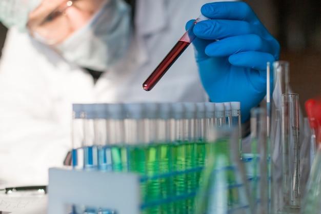 Исследователь в лаборатории смотрит на образец крови больного
