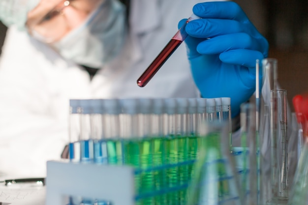 Researcer in a laboratory looking at the diseased blood sample