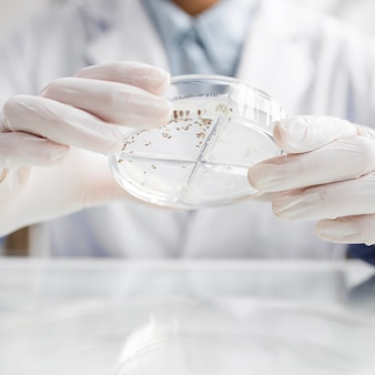 Researcher with petri dish in the biotechnology laboratory