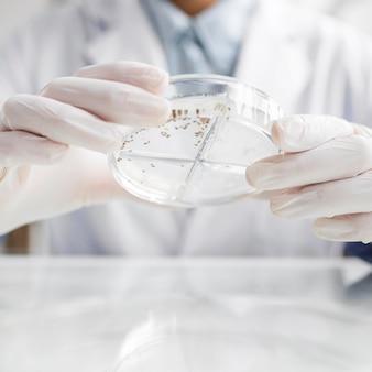 생명 공학 실험실에서 페트리 접시를 가진 연구원