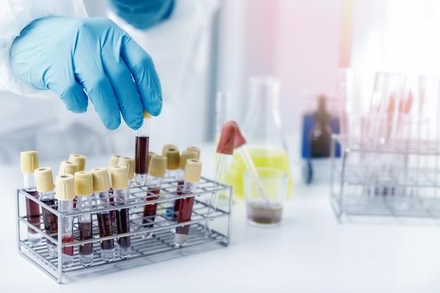 研究者は実験室で血液サンプルをテストします