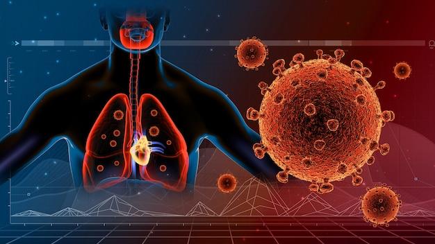 呼吸器系肺およびコロナウイルス病covid19感染医療グラフ