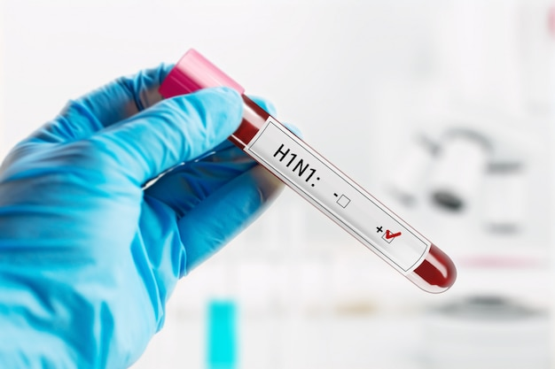 Result blood sample positive with the h1n1 influenza virus