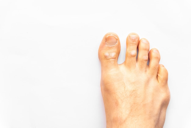 Right foot affected with psoriasis, on a patient in the podiatrist, isolated on white background.