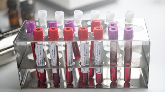A row of human blood samples in a medical laboratory ready to be tested. healthcare background