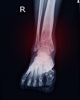 Рентгенологическое исследование rt.ankle при интрамедуллярном остеролитическом поражении правой дистальной голени