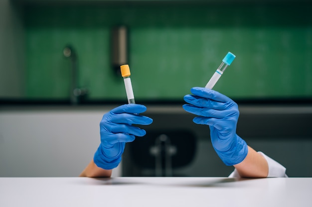 A rubber-gloved hands holds two test tube with the drug