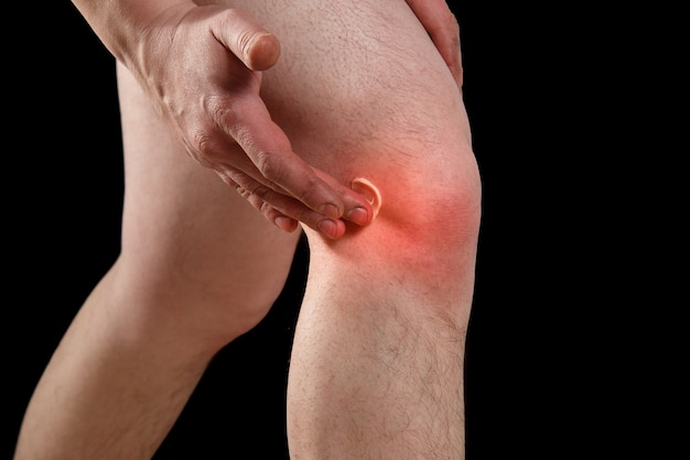 Rubbing medicated ointment into the affected knee