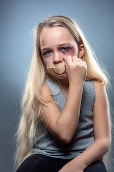 Sad and frightened little girl with bloodshot, bruised eyes and false smile on her mouth. Free Photo