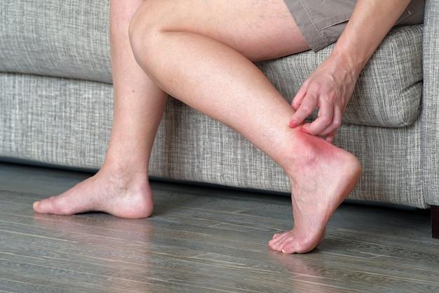 Чесотка на коже. женщина чешет воспаленное место на ноге. лишай на ноге на красном фоне.