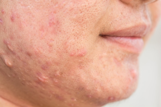 Scar from acne on face