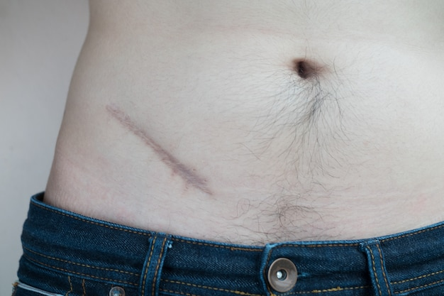 Scar from operation suture, lesions from appendicitis surgery.