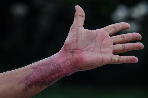 Шрам на руке от огня