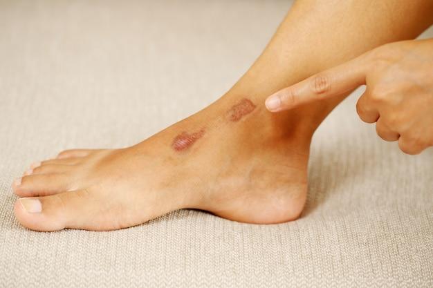 傷跡は、体の傷を癒す過程の結果として形成されます。それが事故による傷であろうと、外科的傷であろうと、やけどであろうと。