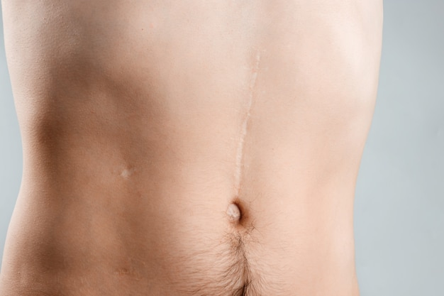 Scars removal concept, large scar after surgery on the abdomen young man