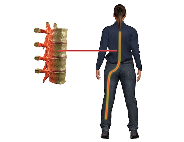Sciatica pain, a symptom of disturbance in the nerve of the spine