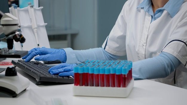 Scientific doctor analyzing sample of blood from vacutainer