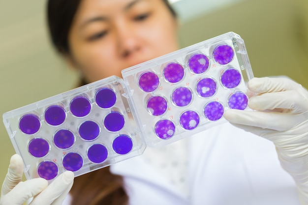 Scientist hand is holding test plate of dengue viruses in laboratory