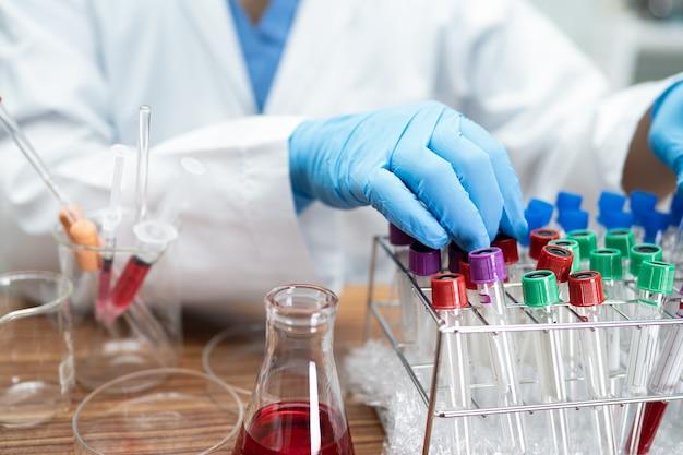 Ученый держит и пробирку для анализа вспышки микробиологического образца коронавируса или заразного covid-19 в лаборатории для врача в мире.