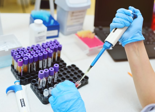 A scientist in a medical laboratory with a dispenser in his hands is doing an analysis.2019-ncov; coronavirus; china;