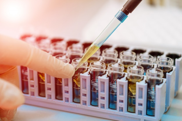 Scientist working with blood sample in laboratory