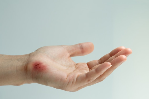 Scratch wound on female hand closeup, healthcare and medicine concept